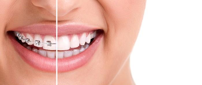 Apparecchi ortodontici: tipologie per ogni necessità