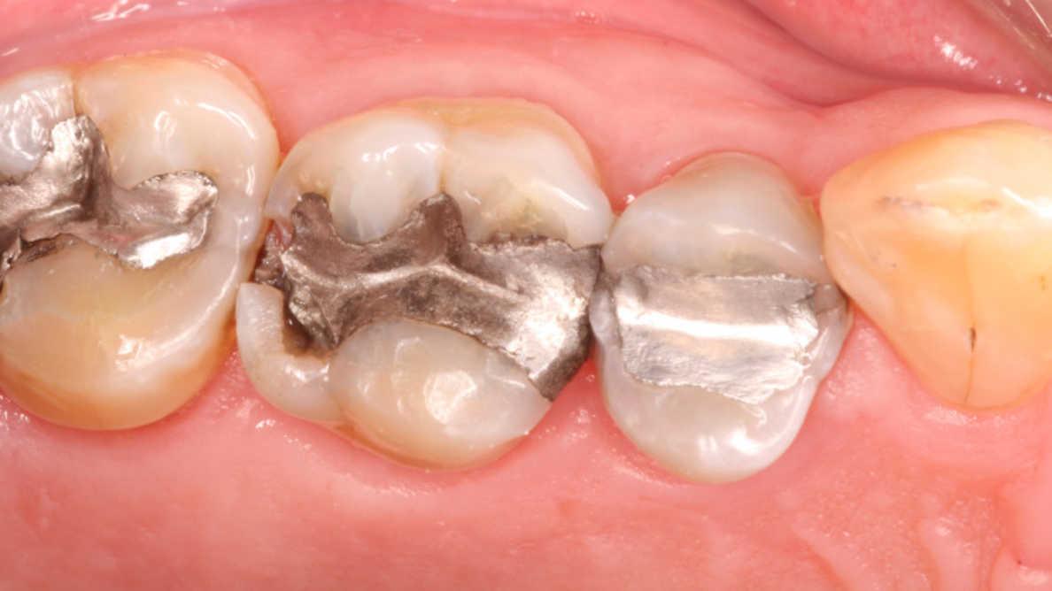Otturazioni in amalgama. Una soluzione o un problema per la bocca?